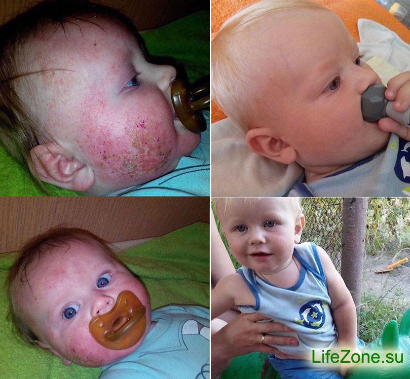 ребенок здоров после детокса и антипаразитарной программы